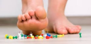 Trending Q and A.   Arch Pain and Plantar Fasciitis